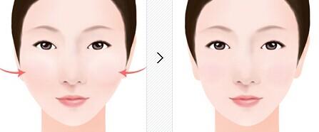 颧骨整形术后脸部高度会不一样吗