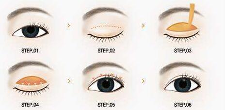 韩式双眼皮几乎没有痛苦吗