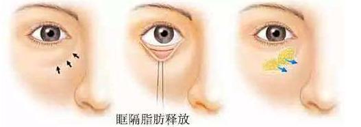 眼袋脂肪释放术后不能碰水吗