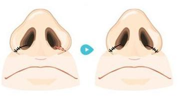 鼻翼缩小术后可以戴眼镜吗