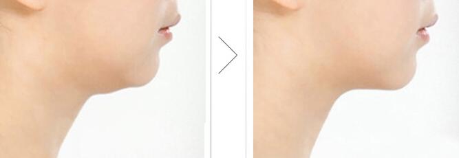 面部吸脂适合什么样的类型呢
