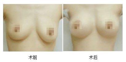 乳房下垂矫正手术方法有几种