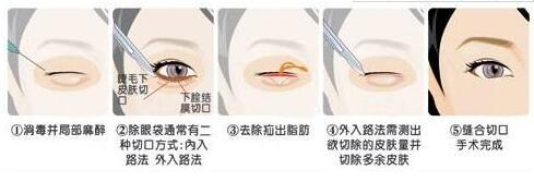 去眼袋手术如何才能保证安全呢