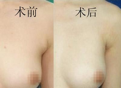 副乳切除在腋下的疤痕明显吗