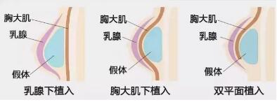 隆胸术后对哺乳和敏感度有影响吗