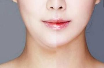 面部吸脂术后需要戴塑形圈吗
