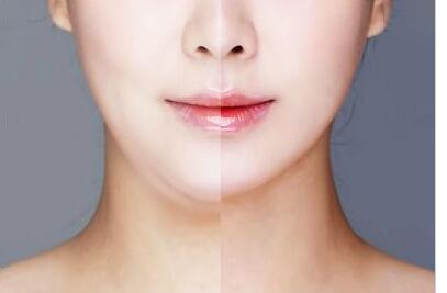 面部吸脂后吃多也是会胖的吗