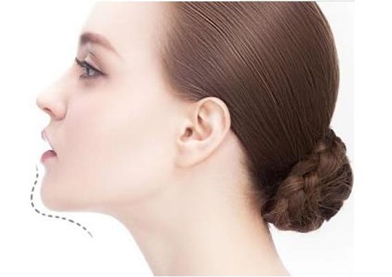 想要做精致的女神玻尿酸丰下巴帮你!