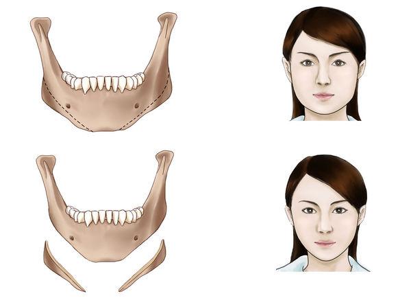 下颌角整形在什么情况下会出现副作用