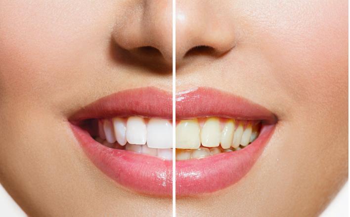 未成年适合做冷光牙齿美白吗