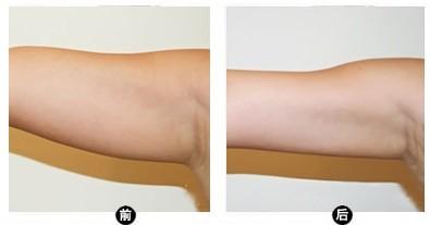 上臂吸脂的多种方法中哪种较为安全有效呢