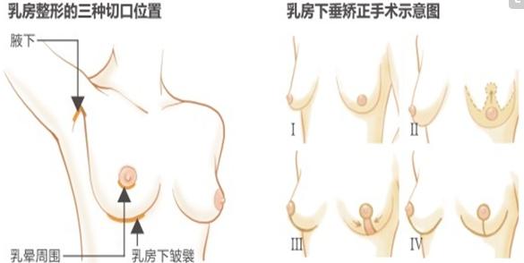 乳房下垂矫正术后自然的程度有多少