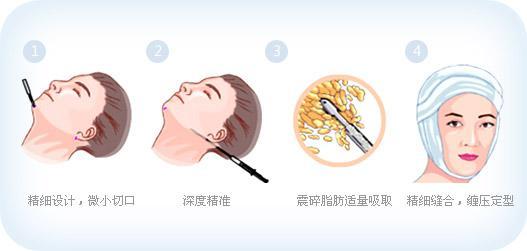 瘦脸选择面部吸脂术能改善皮肤弹性吗