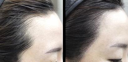 女性头发种植的设计感怎么做