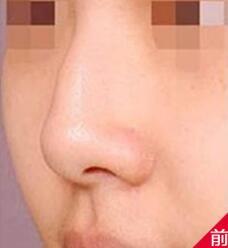 鹰钩鼻矫正案例:改变了自己