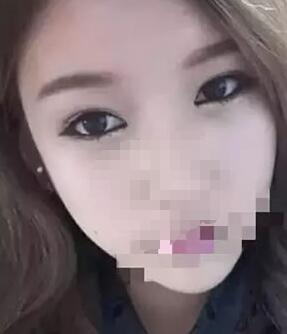 韩式双眼皮案例:变得更美了