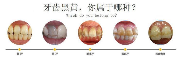 冷光美白牙齿治疗后会出现牙酸吗