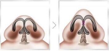 鼻头缩小术手术切口会藏在哪里