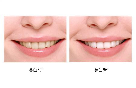 冷光美白牙齿维持多长时间呢