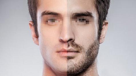 胡须种植术后会不会才感觉痛