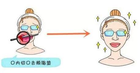 去颊脂垫术后表情还能控制住吗