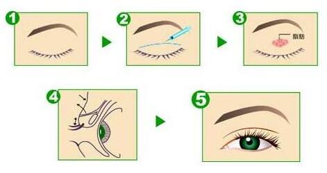 双眼皮术后做到这几步你就成功了