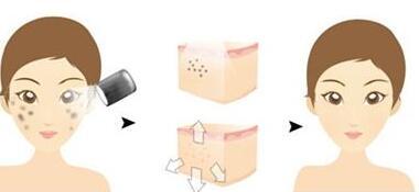 激光全身嫩肤到底会不会导致皮肤变薄了
