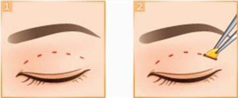 眼部有这些情况的人应该选哪种双眼皮方法