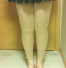 大腿吸脂案例:效果真惊喜啊!