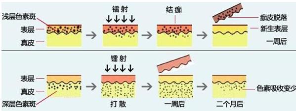 激光祛斑后皮肤会变薄吗