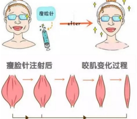 易过敏体质打瘦脸针会有副作用吗