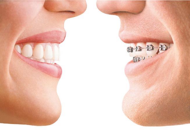 牙齿没换完可以做牙齿矫正吗