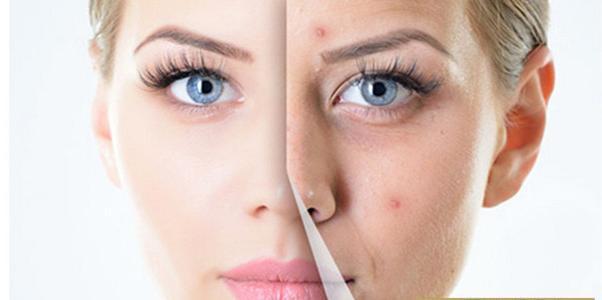 彩光嫩肤祛痘会损伤皮肤吗