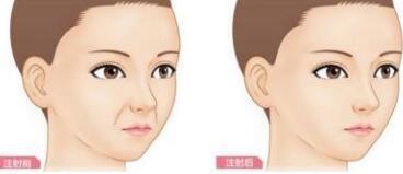 玻尿酸填充鼻唇沟后有排异问题吗