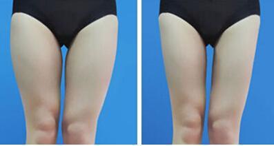 大腿吸脂术后什么时候能沾水呢?