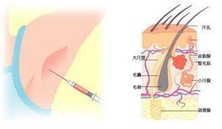 肉毒素注射除皱疗效显著吗