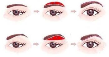 切眉术的恢复期通常要几天