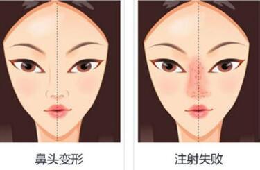 隆鼻失败修复需做常规鼻部检查吗
