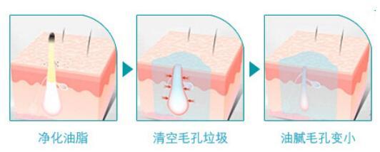 光子嫩肤适不适用于痘痘肌呢