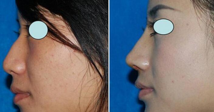 驼峰鼻的人应该要如何矫正