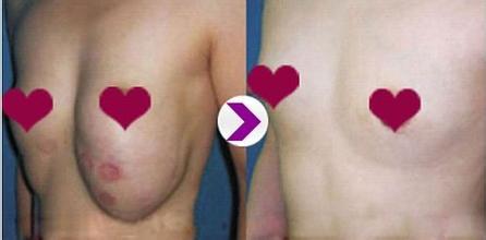 人造脂肪注射隆胸取出有保障吗