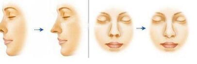 鼻小柱整形需注意鼻翼软骨的对称性吗