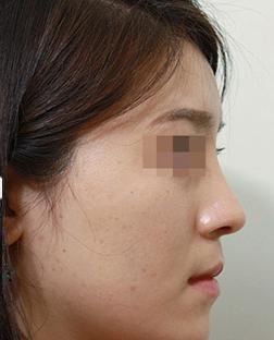 假体隆鼻案例:变化太惊喜了