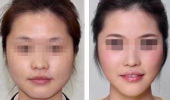 瘦脸针注射会不会导致面部过于麻木
