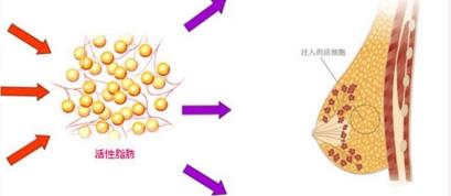多维立体自体脂肪隆胸,让你体验美的升级
