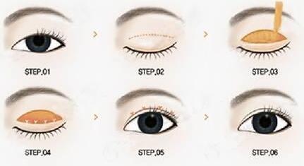 韩式双眼皮术后双眼皮形态自然吗