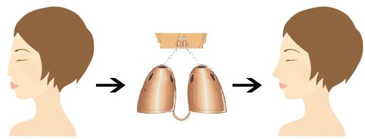 鼻部再造的手术难度大吗
