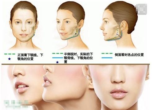下颌角整形术会有副作用吗