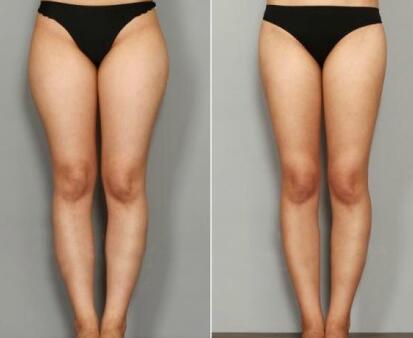 大腿吸脂术后坏死副作用会有吗