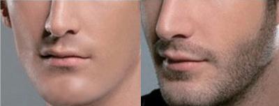 胡须种植能正常刮胡子吗